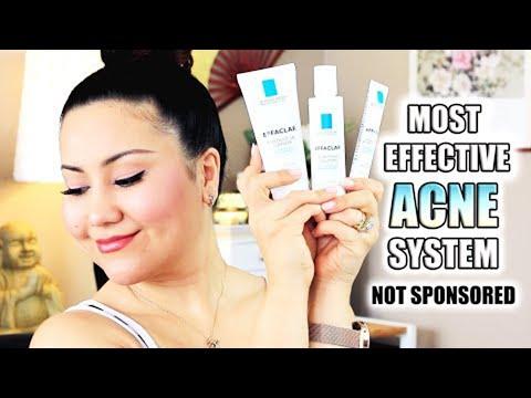 LA-ROCHE POSAY EFFACLAR ACNE KIT | Gel Cleanser, Clarifying Solution & Dual Action Acne Treatment